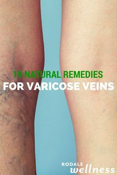 19 Natural Remedies for Varicose Veins - Soothe away varicose veins with these tricks you can try at home.