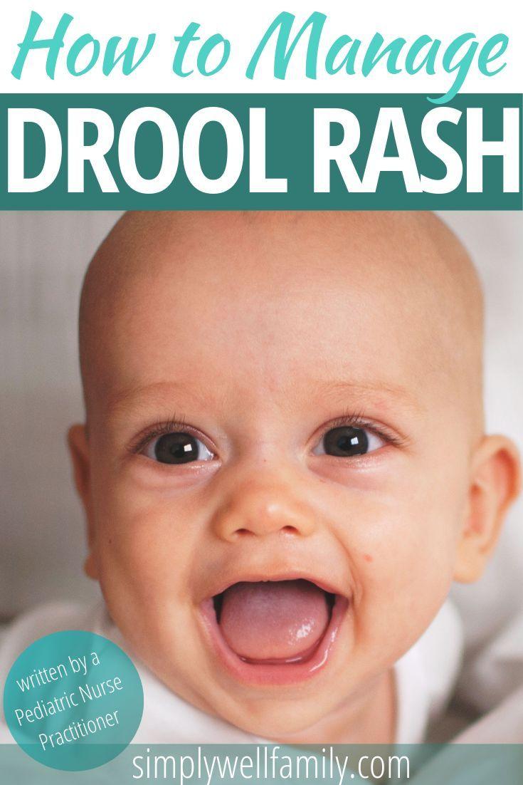 a129669f444ee43a95d838d5010c58b0 - How To Get Rid Of Teething Rash Around Mouth