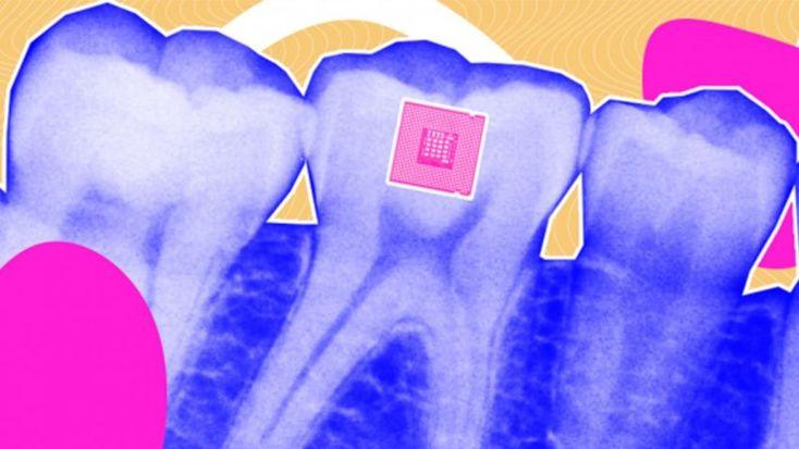 Γνωρίστε τον αισθητήρα δοντιών που αναγνωρίζει τι τρώμε (φώτο)