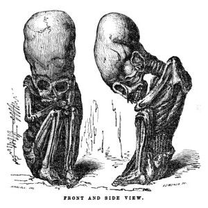 A foetal mummy, illustrated by Rivero and Tschudi