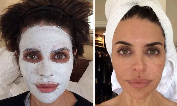 Lisa Rinna, 50, unveils glowing complexion after face mask