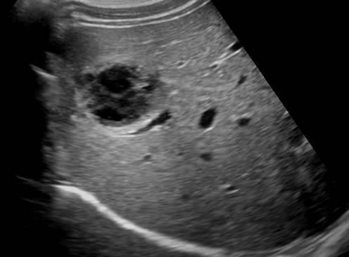 16Post traumatic lesion that is not vascularized. There is no hemoperitoneum. It proved to be an intraparenchymal hematoma