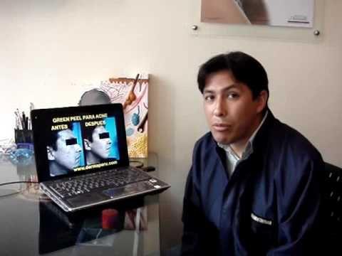 Testimonio: Tratamiento de acne con Green Peel realizado por Dermatologo en Lima Perú - http://solucionparaelacne.org/blog/testimonio-tratamiento-de-acne-con-green-peel-realizado-por-dermatologo-en-lima-peru/