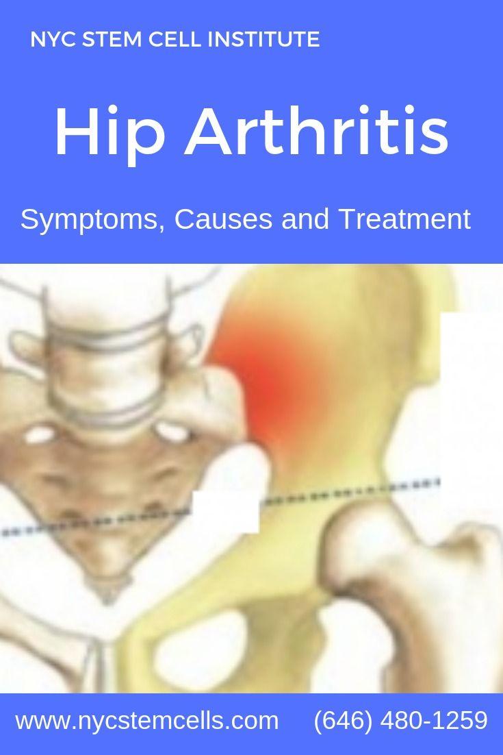 Regenerative Medicine Stem Cell Therapy For Hip Arthritis Inflammatory Arthritis Stem Cell Therapy Stem Cells