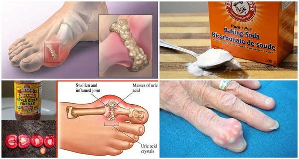 Defective metabolism of uric acid causes arthritis, especially in the smaller bones of the feet, deposition, and chalkstones, and can add episodes of acute pain. This is also known as gout, a metabolic disorder. This causes swelling and stiffness in the feet, and in some cases severe pain and swelling that develops within few hours. …