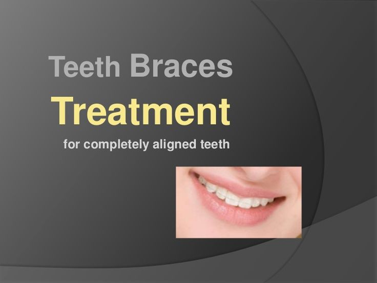 Teeth braces are completely safe and they help people get rid of those ugly crooked teeth and the misalignment in the teeth.