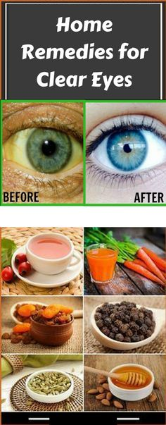 Eye Wash Solution Home Remedy | Home Remedies for Clear Eyes  #health #natural #remedies #fitness#herbalist #meditation #peace #beauty #green #female #beautiful #girl #boy