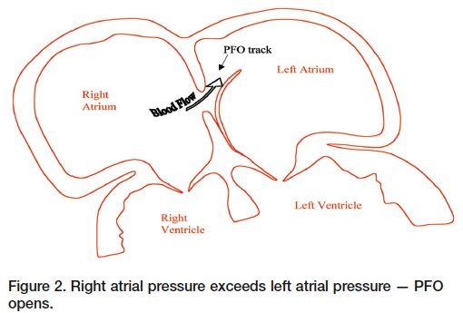 Een trombus in een persisterend foramen ovale   https://www.ntvg.nl/artikelen/een-trombus-een-persisterend-foramen-ovale/volledig