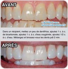 Voici un truc que m'a révélé mon dentiste qui va rendre vos dents blanches en un rien de temps ! Tout ce dont vous avez besoin, c'est d'un peu de bicarbonate et d'eau oxygénée.  Découvrez l'astuce ici : http://www.comment-economiser.fr/comment-avoir-dents-blanches-rapidement-pour-mariage.html?utm_content=bufferbe358&utm_medium=social&utm_source=pinterest.com&utm_campaign=buffer