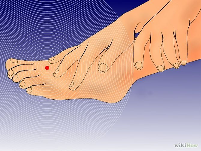 cure numbness in your feet and toes | hands, toe and do you, Skeleton