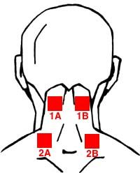 how to use a tens unit for migraines