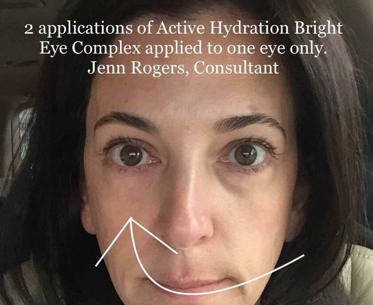 Active Hydration Bright Eye Complex results on one eye ...