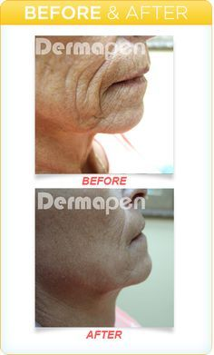"Because of the degradation of the skin over time, the required regimen for treatment is a preventative protocol. The Dermapen® promotes a process of new skin growth through the science of Collagen Induction Therapy (CIT). The most effective way to stimulate or ""Induce"" new skin is by micro-needling with the Dermapen's® vertical stamping method. This new stimulation can be done quickly and easily while keeping the epidermis intact and down-time to a minimum."