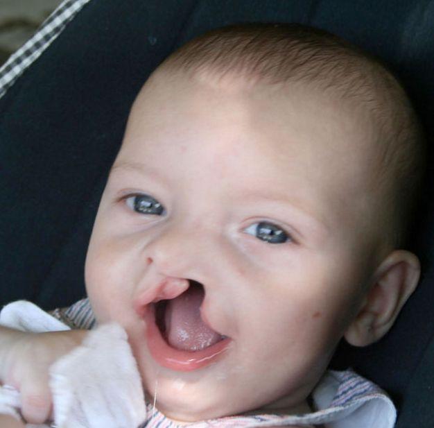 Sandrine, maman de Balthazar et Calypso, est enceinte quand elle apprend que son petit Diego va naître avec une fente labio-palatine unilatérale (« bec-de-lièvre »). L'idée d'avoir un enfant différent la panique. Aujourd'hui, elle raconte son histoire dans un très beau documentaire*. Sans clichés ni tabous, elle dévoile son parcours depuis l'annonce jusqu'à la réparation du visage de son bébé. Une première étape sur un long chemin. Et témoigne de sa propre transformation. Éclairant, sensible…