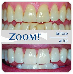 Zoom teeth whitening; before and after  repinned by www.jcraigalexanderdmd.com