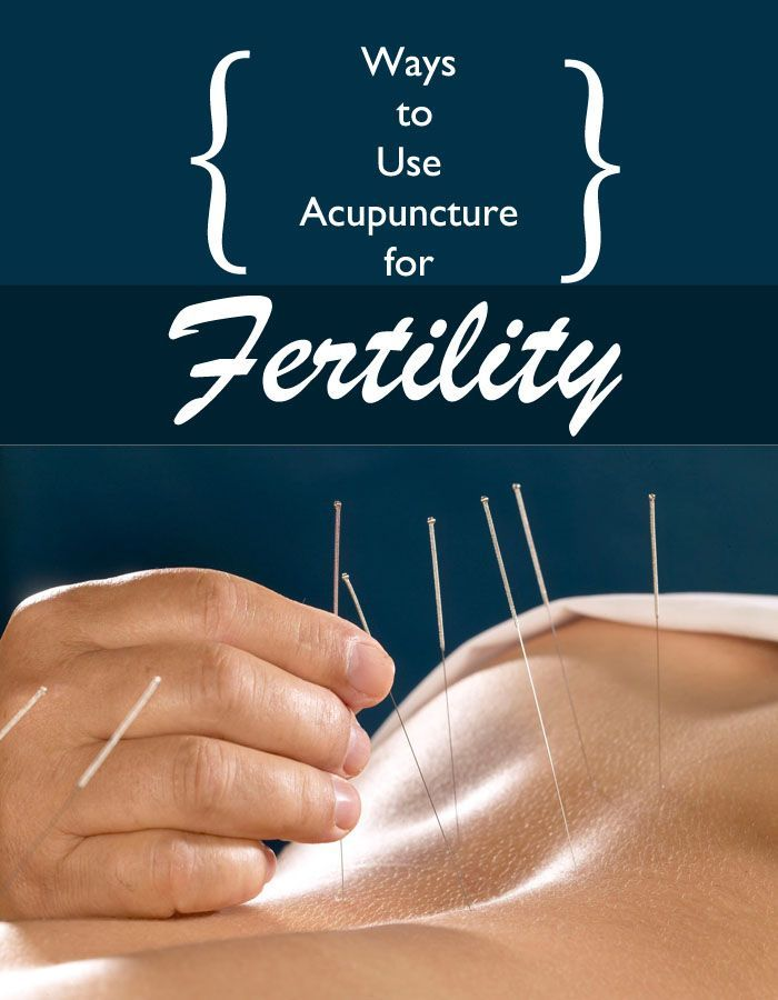 Ways to Use Acupuncture for Fertility