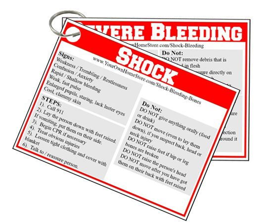 Printable first aid reminder cards for severe bleeding and shock.