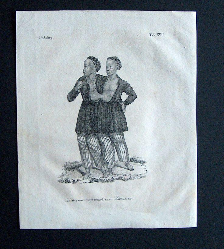 DE Siamese Tweeling Siamese Twins, die Zusammengewachsenen Siamesen