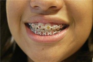 how to make teeth straight without braces naturally