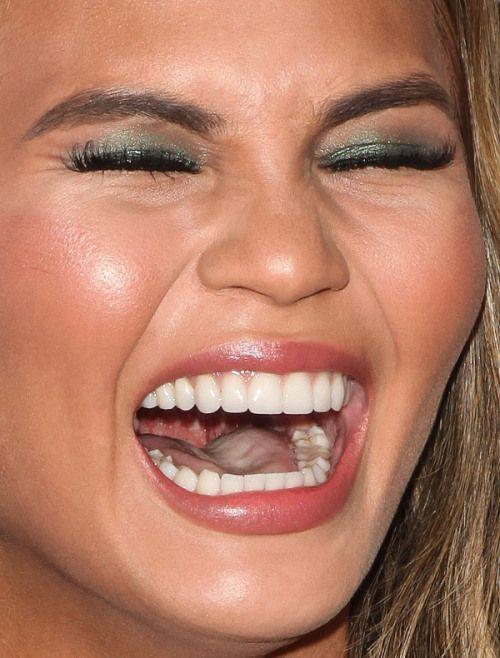 Photo chrissy teigen celebrity teeth