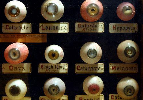 https://flic.kr/p/4x55Tk | Occular disease | Antique display of common eye diseases, lovingly crafted in blown glass (Musée d'Histoire de la Médecine, Université René Descartes)  From series James G. Mundie's Cabinet of Curiosities  [Copyright © 2008 James G. Mundie. Image may not be reproduced in any form without express written permission.]