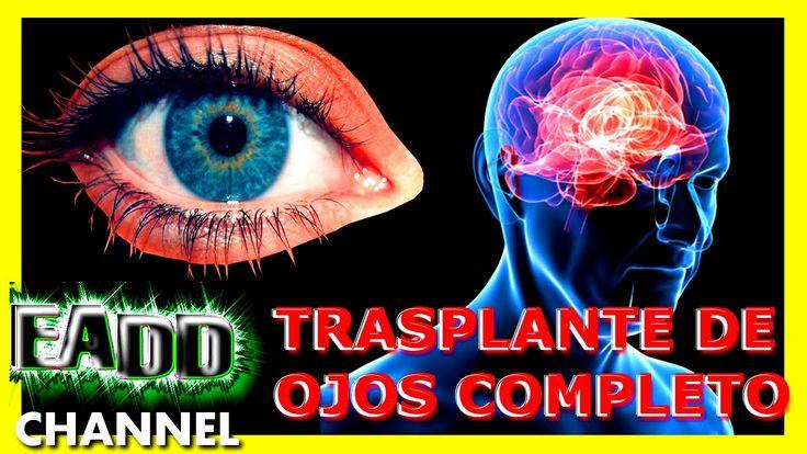 Trasplante de ojos completo - Cirugia extraordinaria para restaurar la v...