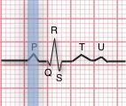 P-waves: 1) Are they present? 2) Do they occur regularly? 3) Is there one P-wave for each QRS complex? 4) Are the P-waves smooth, rounded, and upright? 5) Do all the P-waves have similar shapes?