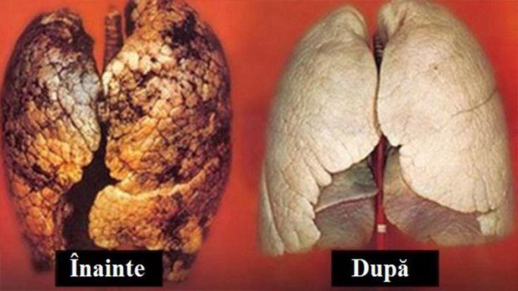 Plămâni de fumător, înainte. după