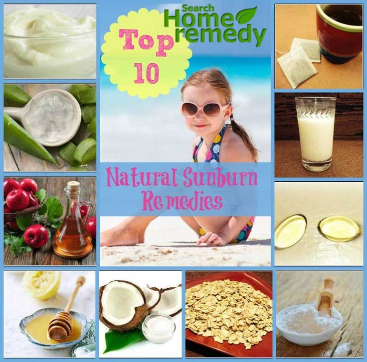 Top 10 Natural Home Remedies for Sunburn Itch and Pain