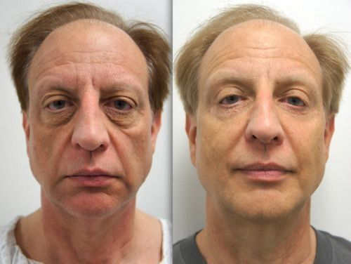 Face Massaging Workouts Is The Most Excellent Path To A No Surgery Facelift