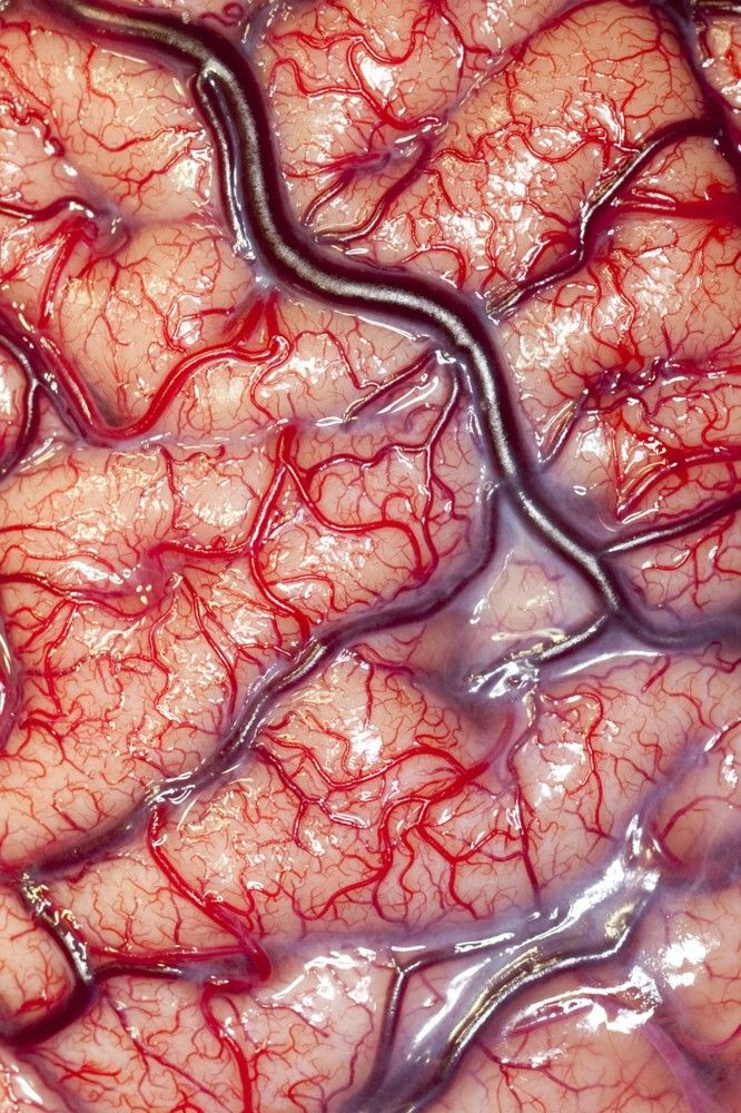 This photograph shows the surface (cortex) of a human brain belonging to an epileptic patient, displaying the arteries and veins that supply its nutrients and oxygen. This photograph was taken before an intracranial electrode recording procedure, in which a flexible electrode grid is attached to the surface of the brain. The patient is then taken to the telemetry ward, where they are observed and recorded for a period of up to two weeks.