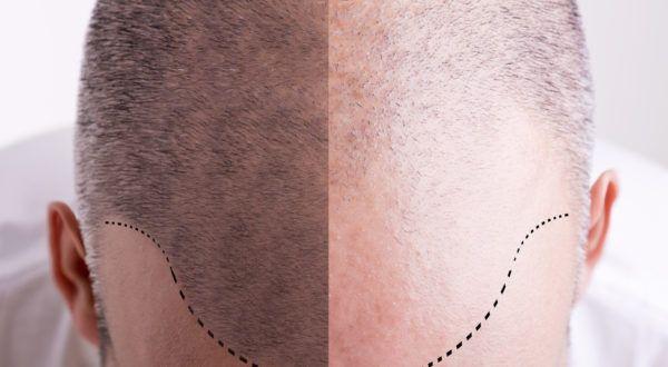 Odată cu înaintarea în vârstă trebuie să înfruntăm realitateacruntă a transformărilor pe care le suferă părul nostru- albește sau cade.    Deși albirea părului sau căderea lui masivăodată cu înaintarea în vârstă este o problemă comună, oamenii de știință nu au reușit,   #albirea parului #cauza chelirii #celule #imbatranire