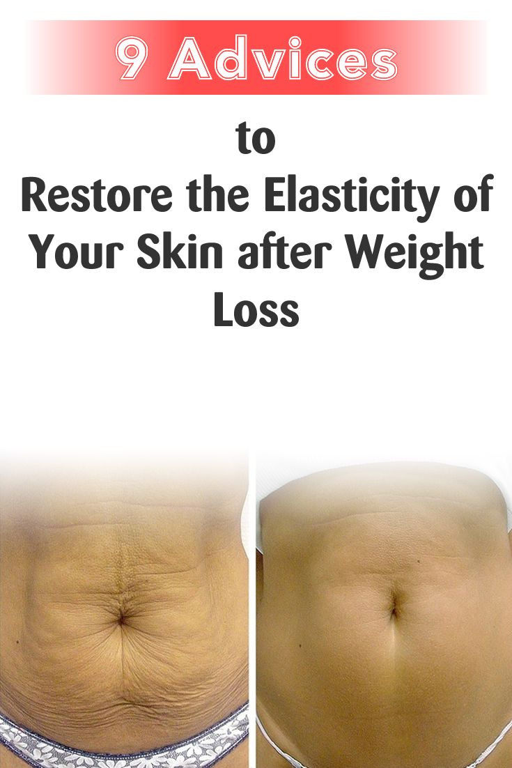 improve skin elasticity weight loss
