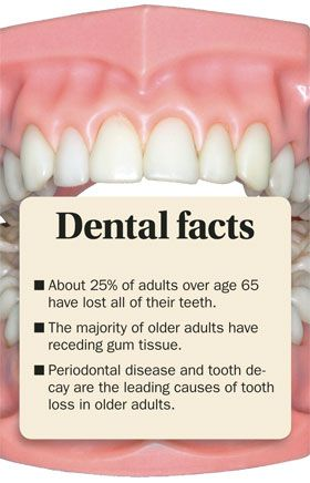 About 25% of adults over 65 years of age have lost all their teeth. The majority of adults have receding gum tissue. Periodontal disease and tooth decay are the leading causes of tooth loss in older adults.