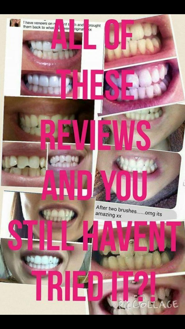 Whitening toothpaste Time for that smile to shine ✨peroxide free ✨results within 4 days ✨reduces stains