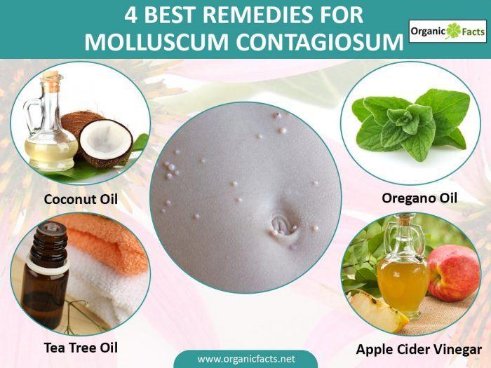 For contagiosum molluscum oil oregano What is
