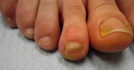 Yellow nails can be a sign of fungal infection, but most cases are caused by repeated use of nail po #HowToGetRidOfToenailFungus