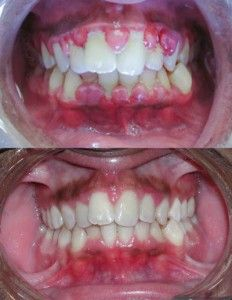 There are two types of gum disease – gingivitis and periodontitis. If you develop mild gum disease – gingivitis – there are a number of home treatments that you can put into practice to restore your oral health. Read more: http://homeremedieslog.com/health-topics/oral-health/gum-disease/treatment-16/