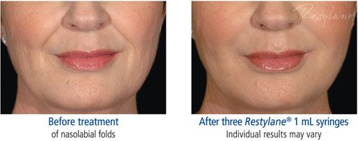 restylane-before-and-after-2