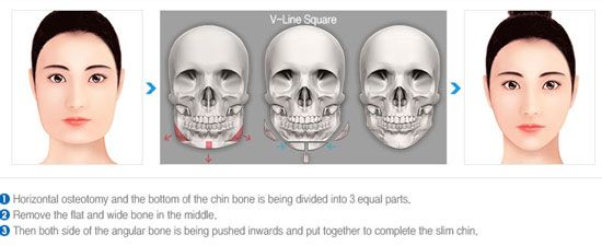 V-Line Surgery | http://plasticsurgeryfact.com/south-korean-plastic-surgery-cost-and-procedures/