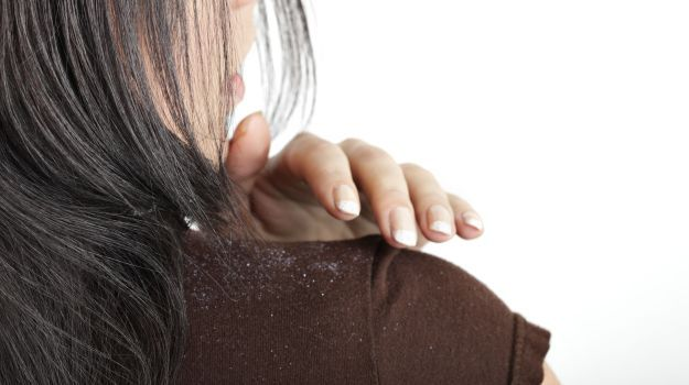 7 Easy Home Remedies to Get Rid of Dandruff - NDTV