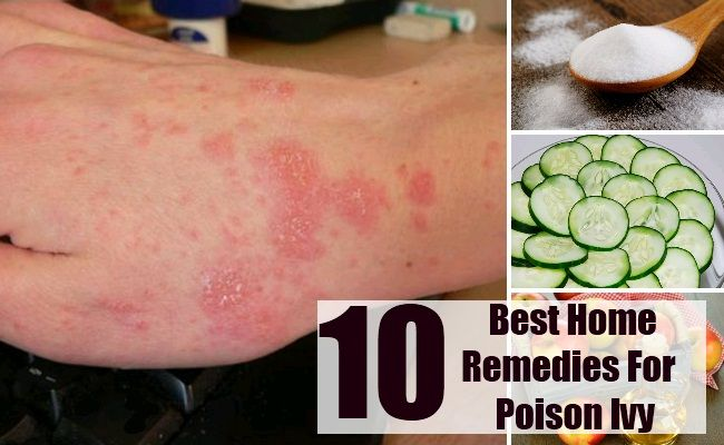 Home Remedies for Poison Ivy This article will outline some of the effective and safe home remedies for poison ivy. Urushiol is an irritating resin found in poison ivy leaf. Rubbi...