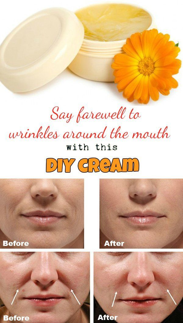 Say farewell to wrinkles around the mouth with this DIY cream: