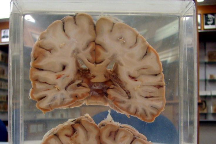 "A brain affected by multiple sclerosis. I would like to compare it to a ""normal"" brain to define the visual differences."