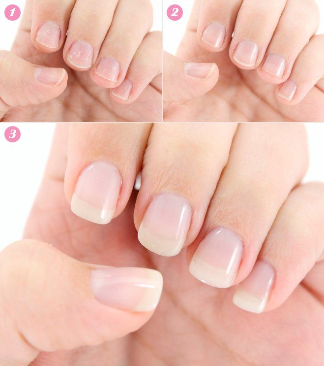 My Bio Sculpture Gel Extension Manicure Before After Hair Nails Beauty Pinterest And Brittle