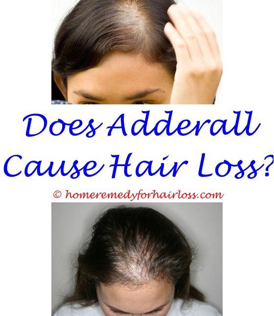 17 best Hair Loss In Women images on Pinterest