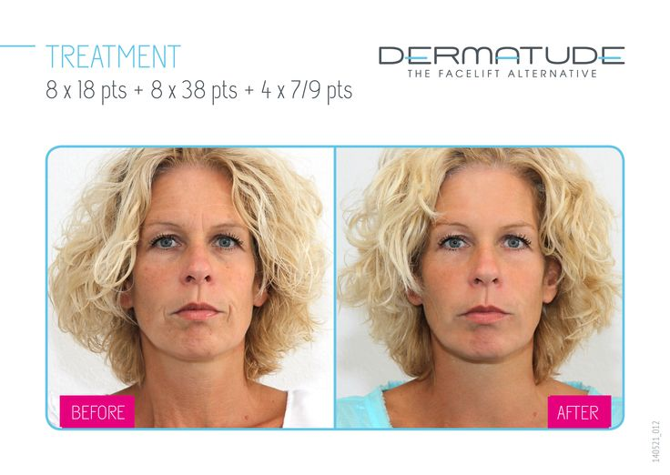 Before and After facial front #Dermatude