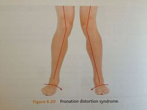 Pronation Distortion: Why You Keep Getting Shin Splints, Ankle Pain, Plantar Fasciitis, and Knee Pain (And How to Fix It)