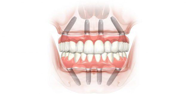 Как восстановить зубы и вернуть улыбку - Лайфхакер