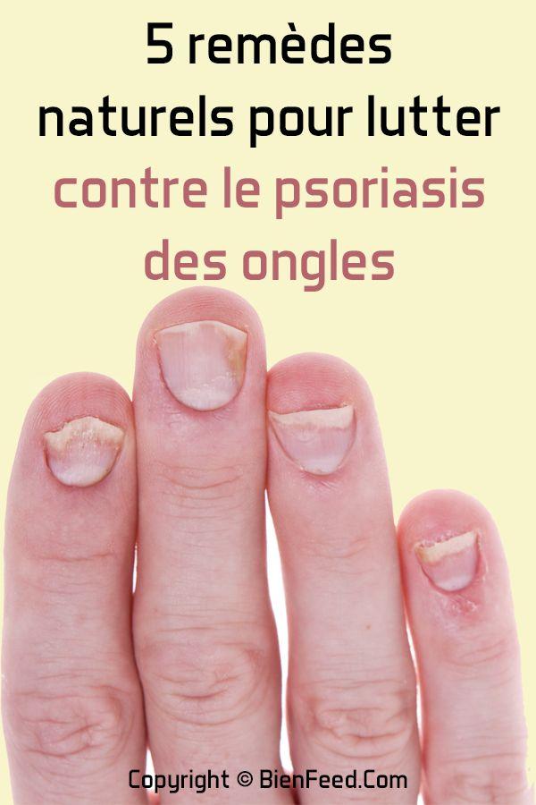 5 Remedes Naturels Pour Lutter Contre Le Psoriasis Des Ongles Psoriasis Ongle Psoriasis Champignon Des Ongles